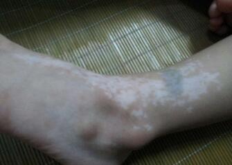 武汉治疗白斑的医院排名