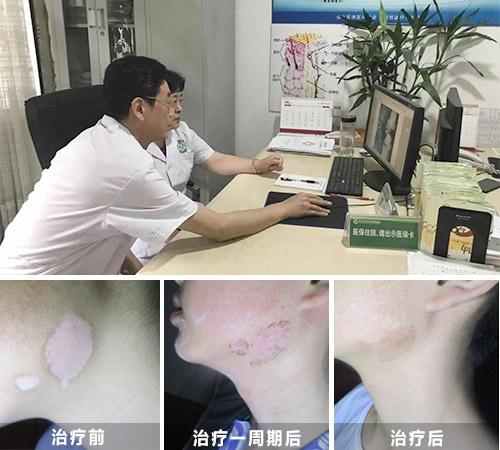 彩虹公益・秋季白癜风公益普查暨规范化诊疗