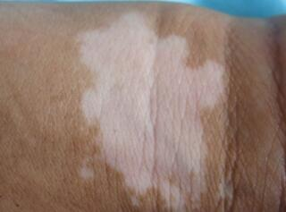 武汉治疗白斑的专科医院?青年人治疗白癜风怎么保护皮肤