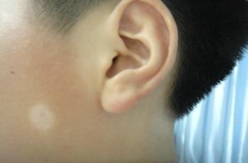 武汉有专门治疗白斑的医院吗?脸上有不规则不明显的发白